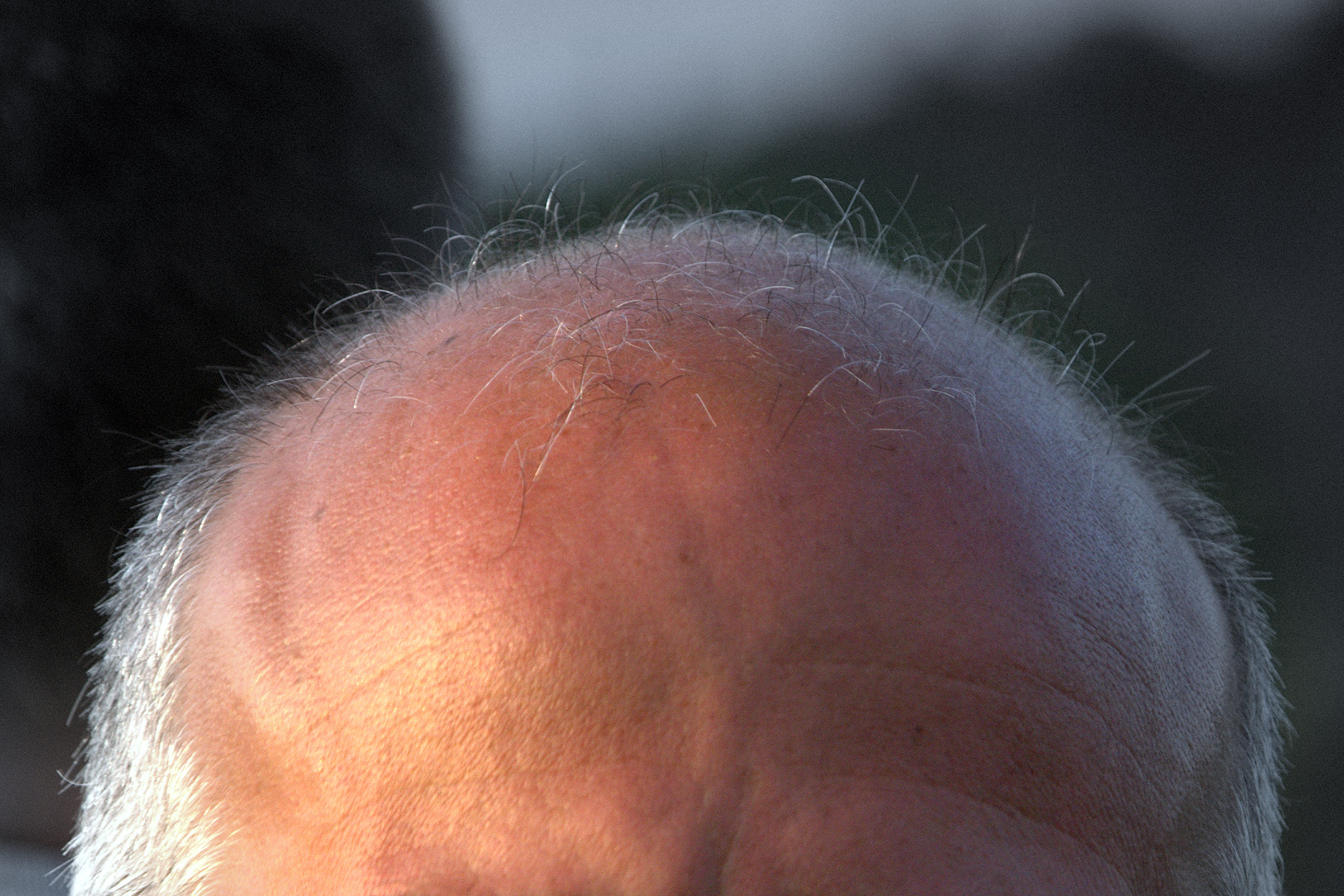 Persistent sexual side effects of finasteride for male pattern hair loss